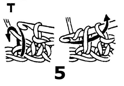 """T""有些又表示是中长针,看这个像短针?"